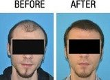 Profile Photos of Hair Transplant