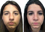 Profile Photos of Nose Reshaping Surgery in Mumbai – Aesthetic Clinic