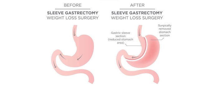 Profile Photos of Gastric Bypass Surgery 311 West 24th st 11B - Photo 5 of 5