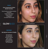 New Album of Glow and Go Skin Bar - Lahore