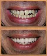 Profile Photos of Elite Dental Rego Park