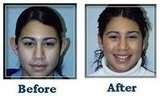 Profile Photos of Ear Reshaping Surgery at Aesthetic Clinic