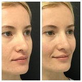 Profile Photos of Dermaplaning And Exfoliation Treatments