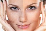 Profile Photos of Chemical Peel