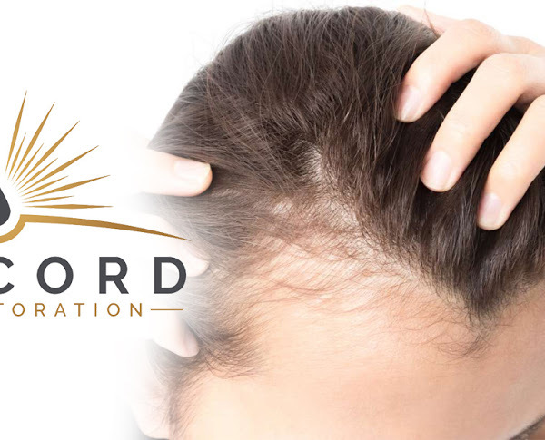 Profile Photos of Concord Hair Restoration 7801 Mission Center Ct. Suite 310 - Photo 1 of 1