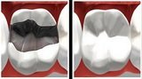 Teeth Whitening Fresno At Fresno Smile Makeovers, we have the skills necessary to handle a variety of dental problems for you as well as your family and loved ones - Whether you require Invisalign, dental implants, cosmetic dentistry or a simple teeth wh