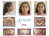 before and after braces Orthodontic Experts West 4709 N Harlem Ave