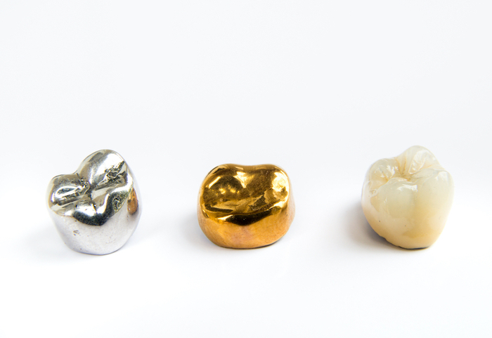 3 types of dental crowns offered by Dentistry At The Grove<br />