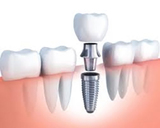 A cross section picture of a dental implant<br />