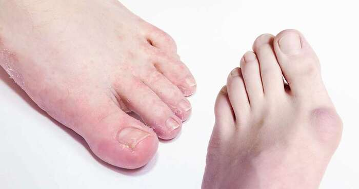 New Album of Dr Foot Podiatry Clinic 304 Orchard Rd, #05-25, - Photo 4 of 4