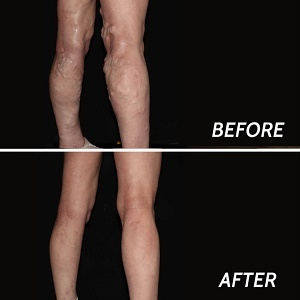 Profile Photos of Varicose Veins Paramus 205 Robin Road, Suite 333-BNM - Photo 5 of 8