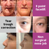 Real people. Real Results!, Skin Beautiful Medical & Cosmetic Clinic Bedford & Luton, Flitwick BEDFORD