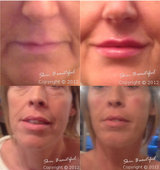 LIPS! CHEEKS! by HELEN BOWES, Skin Beautiful Medical & Cosmetic Clinic Bedford & Luton, Flitwick BEDFORD