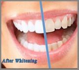 Profile Photos of Direct Denture Care