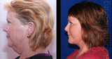 Profile Photos of Specialist Cosmetic Surgery
