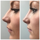 Injectables Southport, Skin Treatments Southport, Luxury Facials Southport, Cosmetic Tattooing Southport, Designer Makeup Southport
