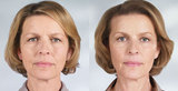 Profile Photos of Botox and Acne Dermalux Treatments - New you Medispa, UK