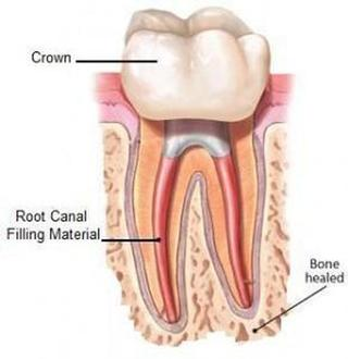 Root Canal Treatment Croydon