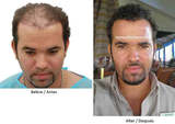 Profile Photos of Skin and Hair Transplant Institute