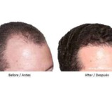 Skin and Hair Transplant Institute