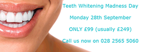 White fillings in Ballymena By Smiles Dental Care