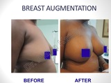 Breast Augmentation/Implants Surgery in Delhi, India