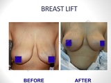 Breast Lift Surgery in Delhi, India
