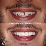 Poor gentleman didn't want to smile for us before my work. Now he smiles too wide. A good problem to have.  1.5 year review. Good to see he's enjoying them.  #smilemakeover #cosmeticdentistry #cosmeticdentist #dentalveneers #smile #instasmile