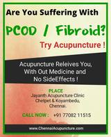 Acupuncture treatment for PCOD / Fibroid in Chennai