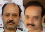 Hair Transplant of DermaClinix - The Complete Skin & Hair Solution Center