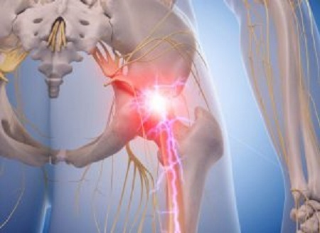 sciatica-nerve-treatment-alaska Profile Photos of Better Health Chiropractic & Physical Rehab 8840 Old Seward Hwy Suite E - Photo 16 of 21