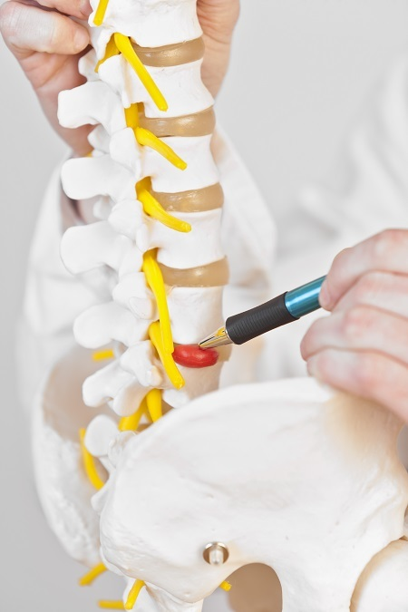 herniated disc-back pain Profile Photos of Better Health Chiropractic & Physical Rehab 8840 Old Seward Hwy Suite E - Photo 9 of 21