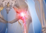 sciatica-nerve-treatment-alaska Better Health Chiropractic & Physical Rehab 8840 Old Seward Hwy Suite E