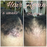 Hair Again Certified Hair Loss Specialists