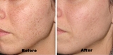 Treatments of OFF Skin & Laser Clinic in Brighton and Hove