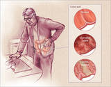 Gastroenterology Treatments of The Gastro Surgeon Chennai