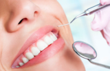 New Album of Teeth Whitening Service in Melbourne - Captivate Dental