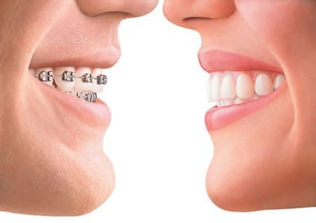 Profile Photos of All About Clear Braces Invisalign Toronto at Dental Arts 350 Front Street West - Photo 1 of 1