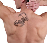 Laser tattoo removal before and after. Attractive Man with tattoo on his back skin , Bella Pelle Cosmetic Clinic, Sydney