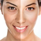 laser photo rejuvenation in dubai