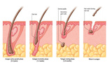Hair Transplant Clinic of Adron Cosmetic Surgery | Hair Transplant Ahmedabad