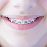 Profile Photos of Coombe Orthodontics