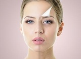 Profile Photos of Permanent Laser Hair Removal