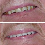 New Album of Burton Denture Clinic