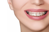 Profile Photos of Moody Orthodontics