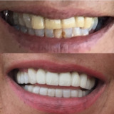 DR MEXICO | Tijuana Dentists in Mexico, dental implants, dentistas en