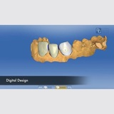 New Album of Dental Crowns Lab