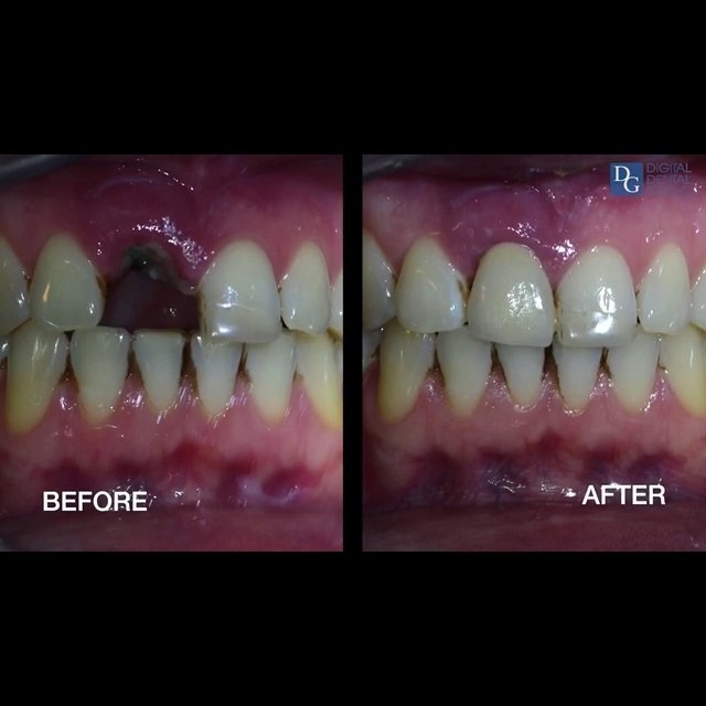 New Album of Abutment Dental Paterson 583 Broadway - Photo 4 of 7