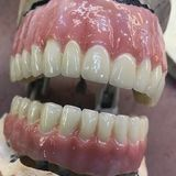 New Album of Abutment Dental Paterson