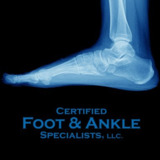 Certified Foot and Ankle Specialists Jupiter